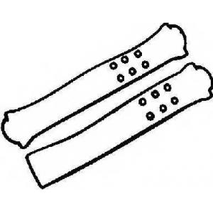 Комплект прокладок, крышка головки цилиндра 155260101 reinz - TOYOTA CELICA Наклонная задняя часть (T16) Наклонная задняя часть 2.0 GT